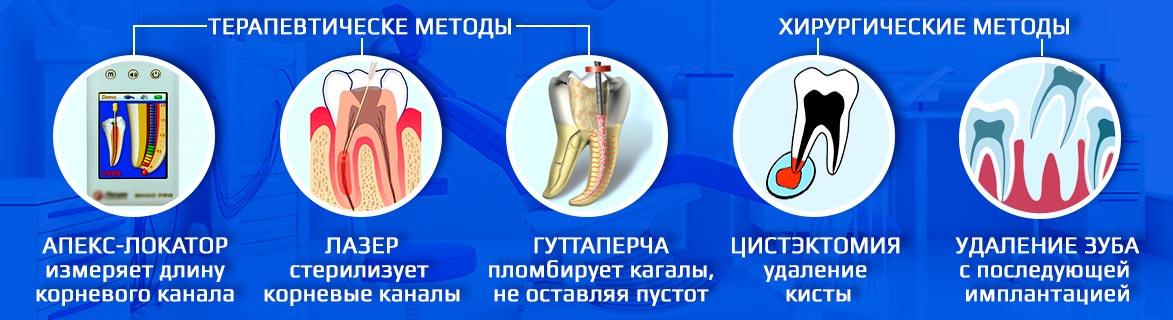 Терапевтические и хирургические методы лечения периодонтита