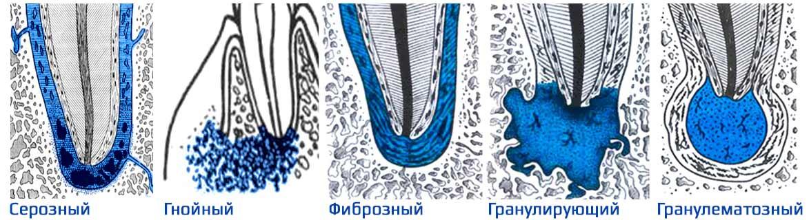Виды периодонтита острых и хронических форм